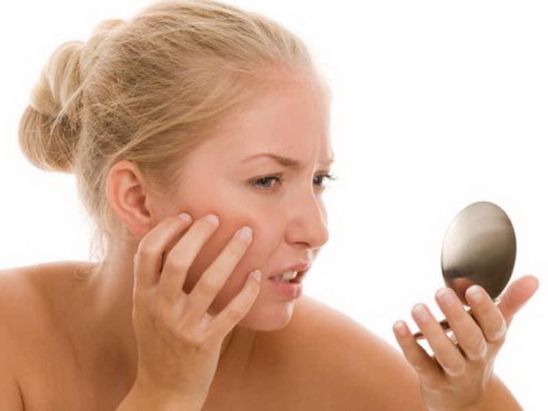 sữa rửa mặt trị mụn gây khô da